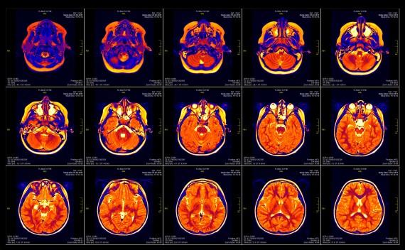 NIH_MRI