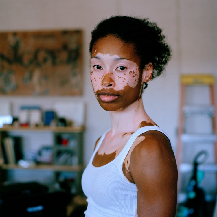 Semebene McFarland, who has a skin condition that causes her to lose pigment, was photographed by Noelle Theard for the book One Drop: Shifting the Lens on Race.