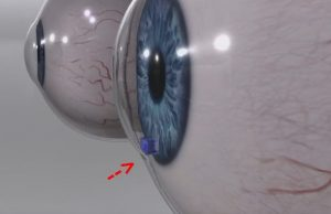 New device could save glaucoma patients' eyesight