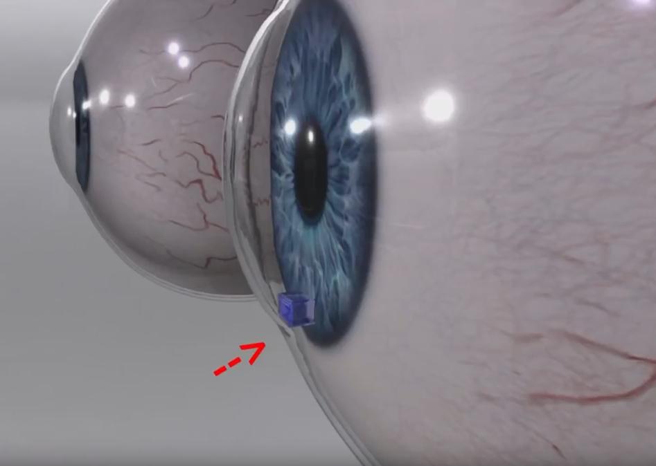 eye-device