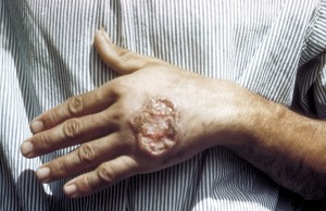 CDC image of skin ulcer due to leishmaniasis.